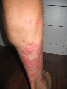 Foto 1 psoriasis