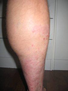 Foto 3 psoriasis